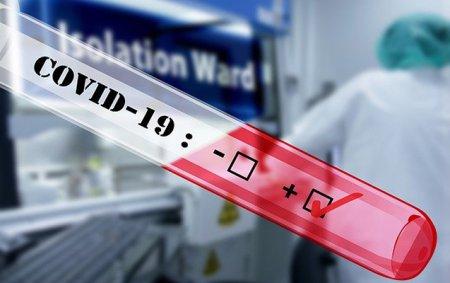 Azərbaycanda daha 44 nəfərdə koronavirus aşkarlandı - 1 nəfər vəfat etdi, 65-i sağaldı